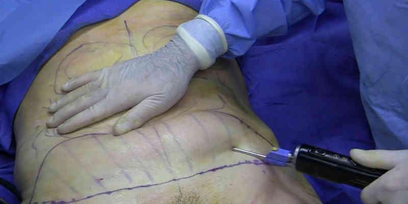 liposuction for penis enlargement