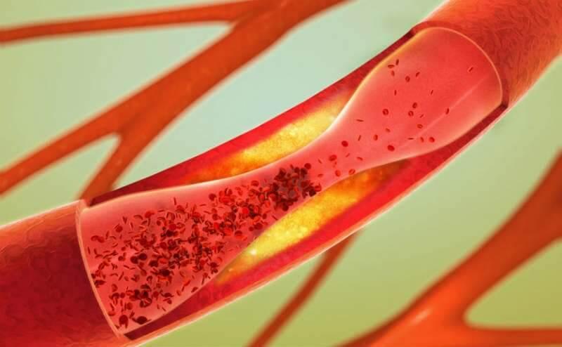 Ashwagandha Controls Cholesterol Levels